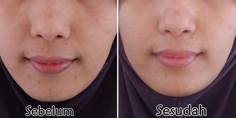Review Brightly Ever After Serum Scarlett Whitening